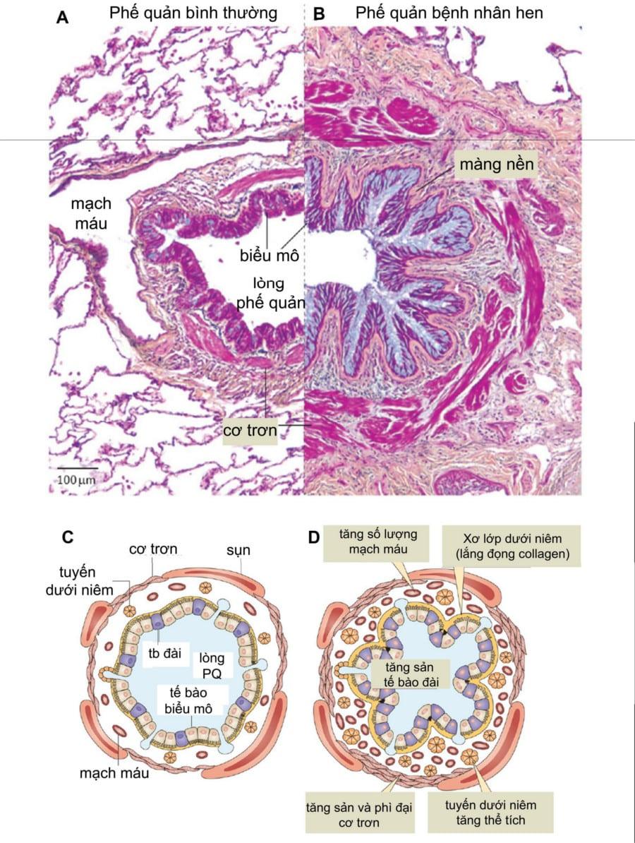 Hình 1. Mô bệnh học phế quản ở người bị hen so với phế quản bình thường